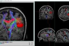cerebro 2_rsz