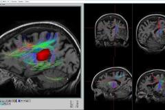 cerebro 3_rsz